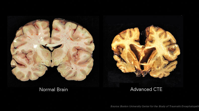 Chronic Traumatic Encephalopathy (CTE) is a progressive degenerative brain disease, often found in people with a history of repetitive brain trauma.